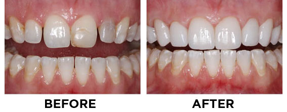 cosmetic dentistry direct and indirect veneers Cosmetic dentistry in  dental veneers veneers are a cosmetic dental procedure in which a thin layer of porcelain  the procedure can be direct or indirect.